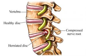 215-back-injuries-herniated-disc