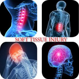 says-210 soft_tissue_injury